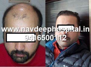 Before After FUE hair transplant at Navdeep hair hospital and laser center, Panipat, Haryana, India