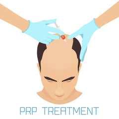 prp-treatment