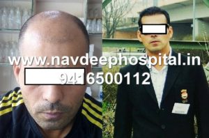 Before and After 7 months of FUE hair transplant of sports coach of India at Navdeep hospital and hair transplant Clinic, Panipat, Haryana, India.