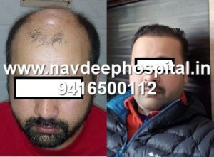 Before After FUE hair transplant at Navdeep hair hospital and laser center, Panipat, Haryana, India