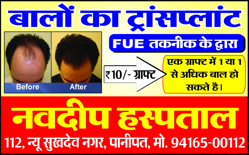 FUE Hair transplant at 10 Rs Per Graft discounted low cost – Dr